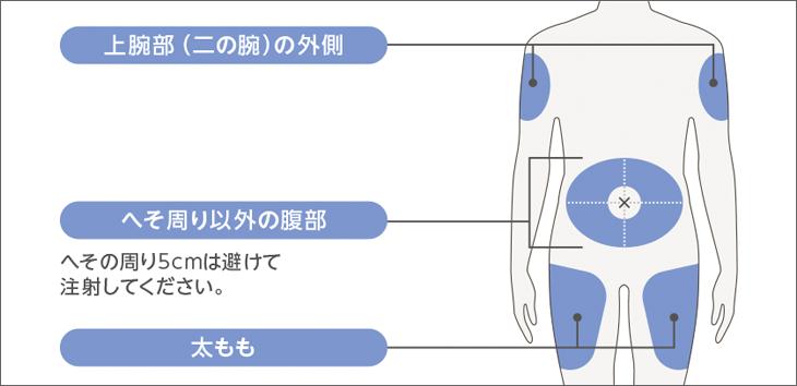 投与スケジュール図